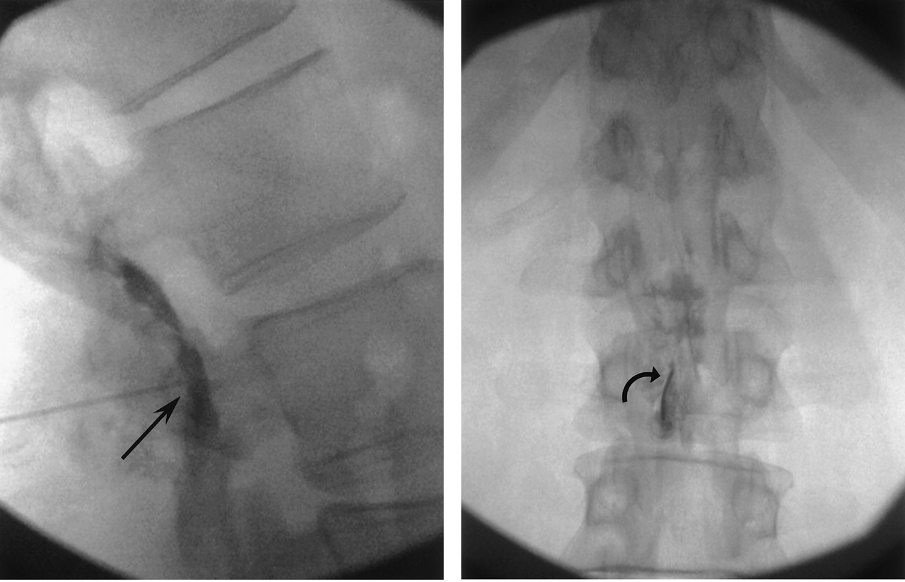 fluoroscopically guided caudal epidural steroid injections