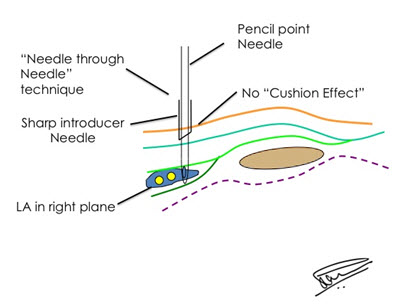 "needle_through_needle_for_eliminating_""cushion_effect""_for_correct_needle_tip_placement"