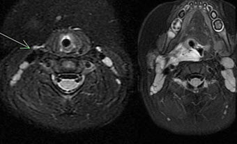 MRI-of-the-neck-and-oropharynx