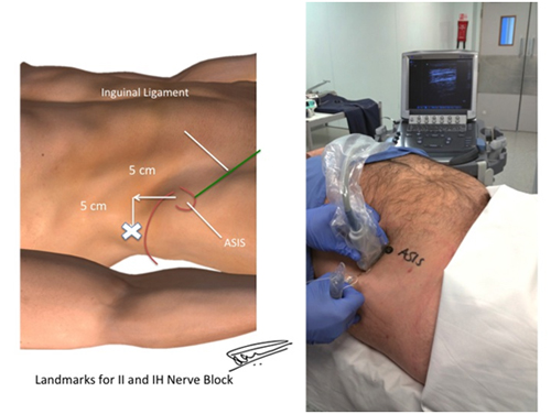 Ultrasound guided hernia blocks – Anaesthesia, Pain