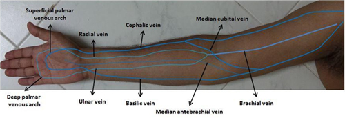 use of ultrasound in peripheral venous catheterization in adult, Cephalic Vein