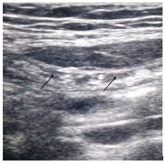 6Ultrasound guided abdominal-Fig-2
