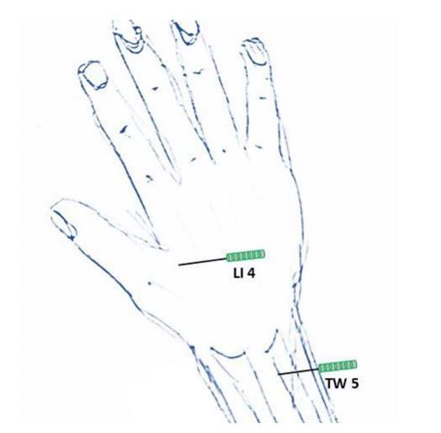 Calcific tendonitis(14--103-CR-Fig-3)