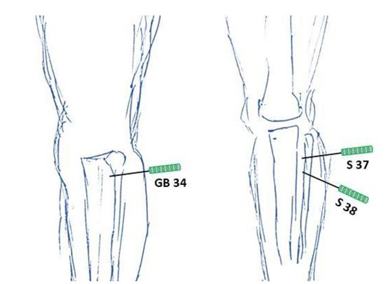 Calcific tendonitis(14--103-CR-Fig-4)